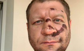 Александр Емельяненко высказался опереходе вкулачные бои