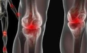 Симптомы и причины появления болезней суставов