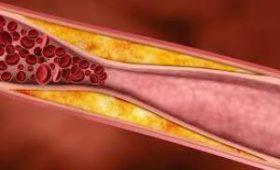 Холестерин влияет на важное свойство организма — врачи