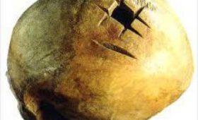 Врачи из древнего Перу признаны мастерами трепанации