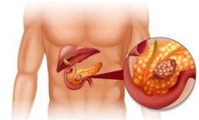 Женщина приняла рак поджелудочной железы за успешный результат диеты