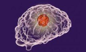Как диагностировать рак головного мозга