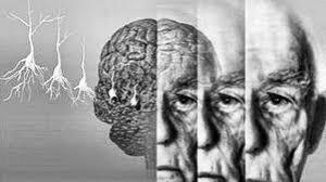 Исследование: гипертония и диабет не связаны с болезнью Альцгеймера