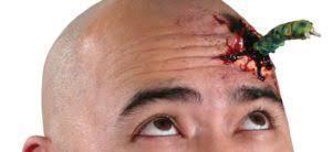 Китаец 30 лет жил с червем в голове