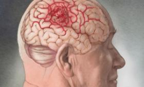 Обнаруживается на последней стадии, лечится в редких случаях: врачи о раке мозга