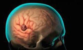 Мать двух детей списывала свою забывчивость на усталость. Но врачи нашли опухоль мозга
